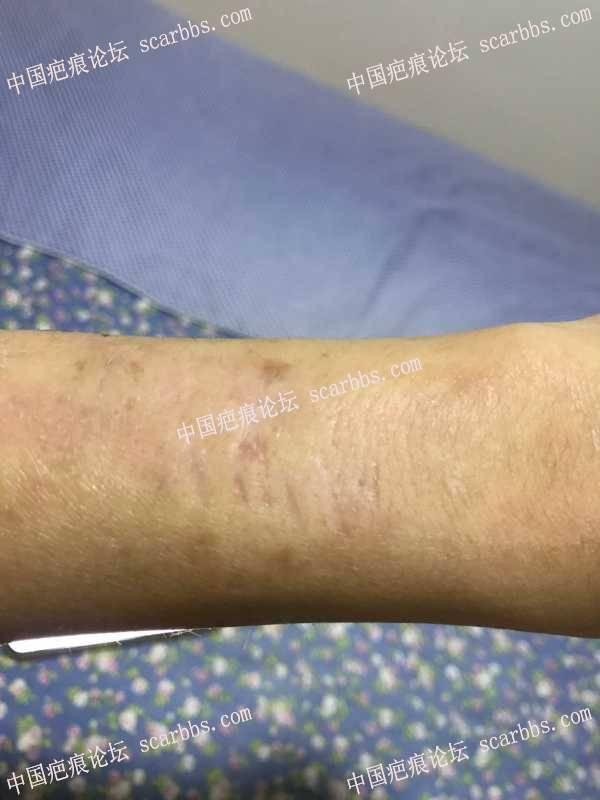 手臂的疤痕切缝反馈