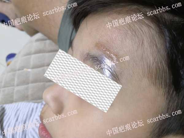 6岁小孩,眉上方表情凹陷,切缝记录