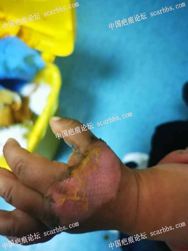 宝宝烫伤第6天了,会留疤吗?我该怎么样抗疤?