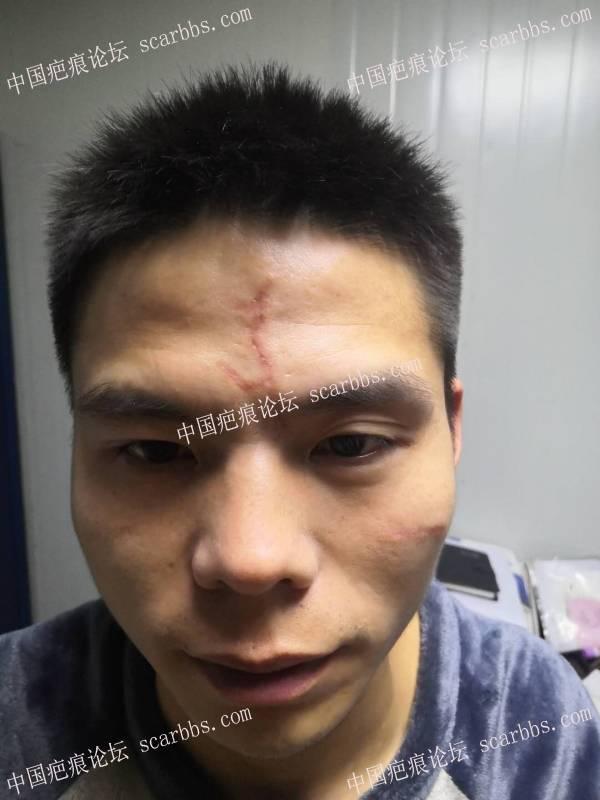 额头和左颧骨的疤痕,做了光电治疗