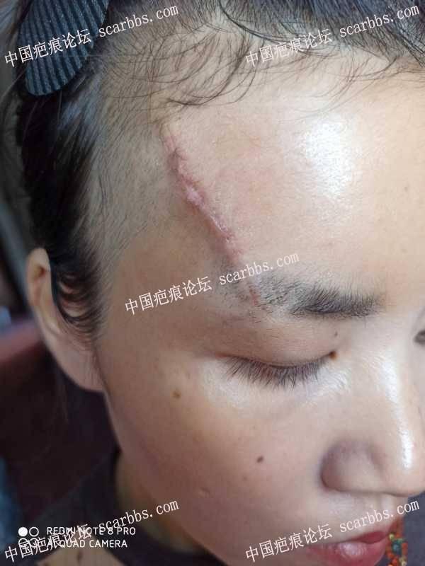 额头凹陷疤痕切除缝合术