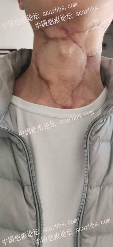 这个疤痕做离子束会有效果吗