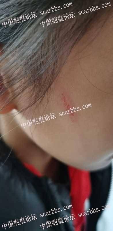 孩子的面部抓伤,会留疤吗?