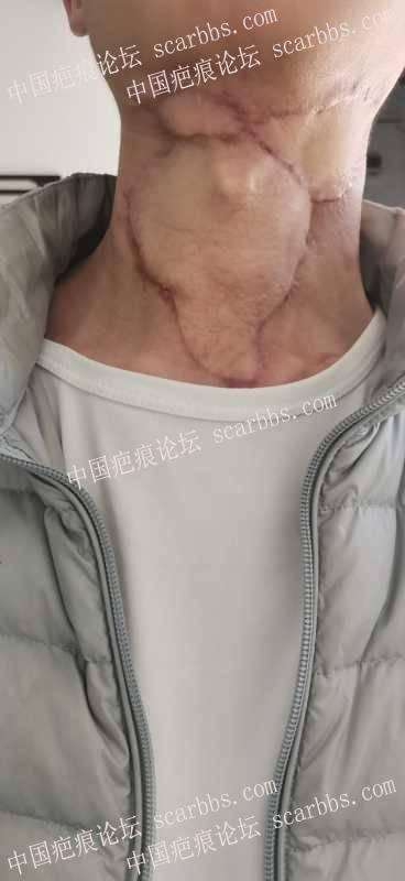 颈部手术疤痕,求助各位大神