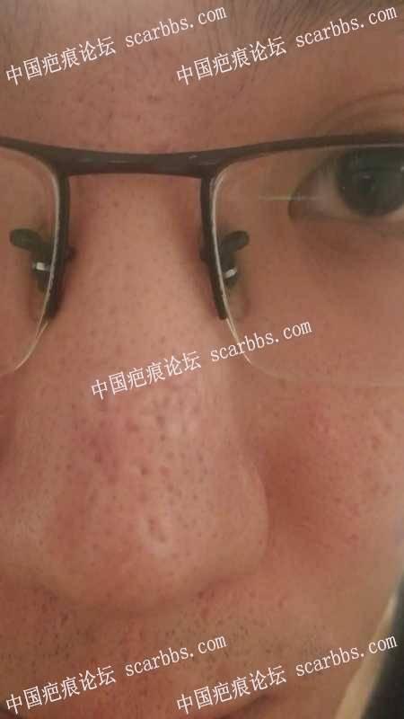 鼻部疤痕应该采取哪种方案