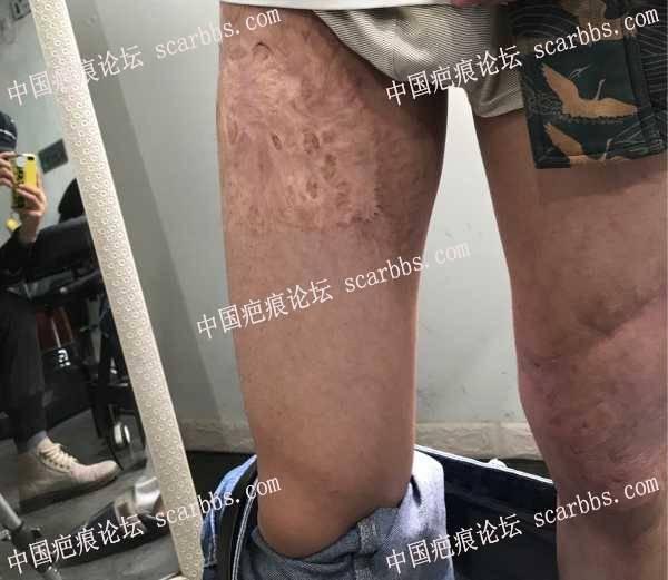腿部小时候的烫伤疤痕,求助张医生