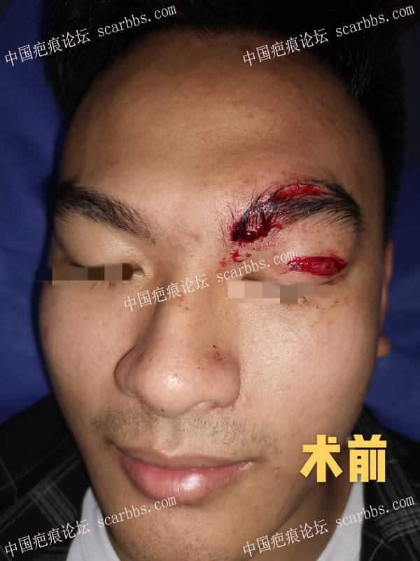 小伙子出车祸,眉弓外伤修复术后1个月恢复得不错!