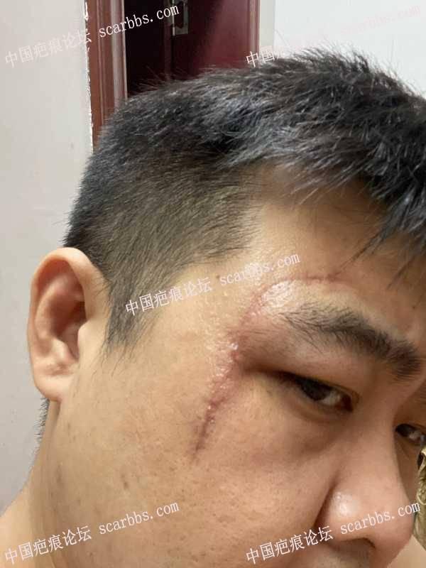 面部很深凹陷疤痕,感谢华美紫馨的免费祛疤活动!!