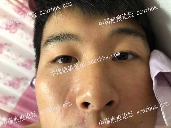 面部的凹陷疤痕怎么治疗,求助