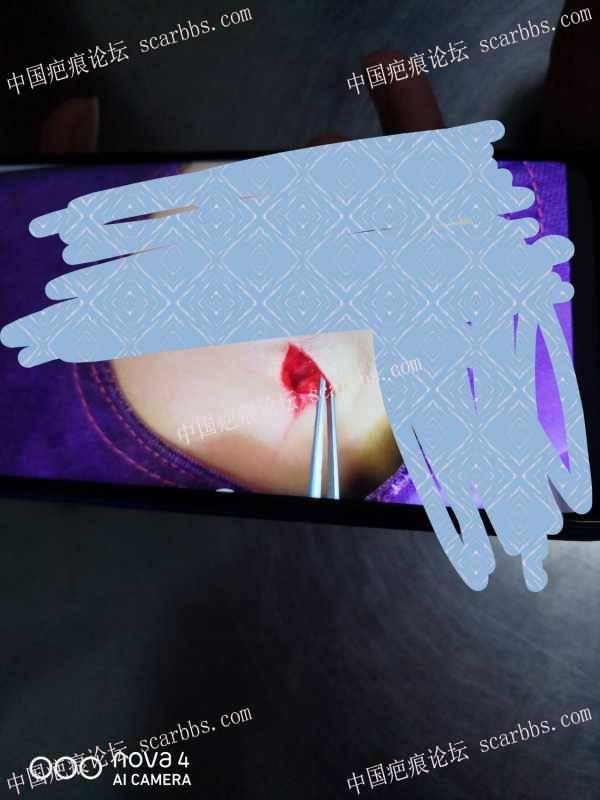 11.20晚上磕伤额头,美容缝针