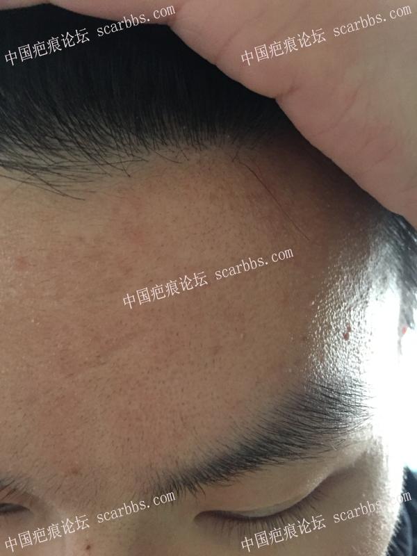 额头疤痕如何治疗