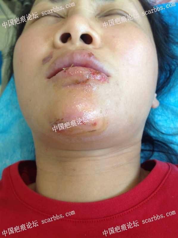 下唇、下颌撕裂外伤,急诊行显微修复!