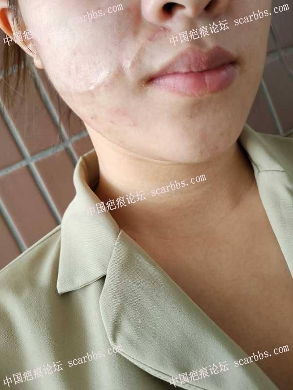 2020.8.28在杨东运教授这里进行面部疤痕手术切缝