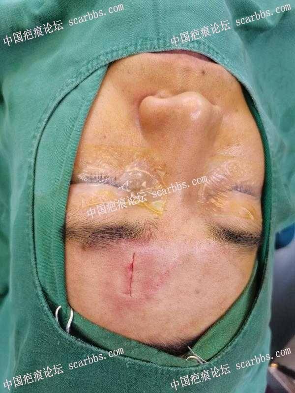 在安医生那做的手术1.5厘米疤痕切缝