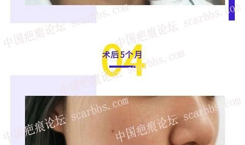 【伍勇医生案例】车祸伤缝合后留疤10多年,疤痕横向凹陷