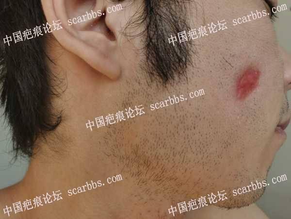 离子束感染产生疤痕,现在已经两个月了