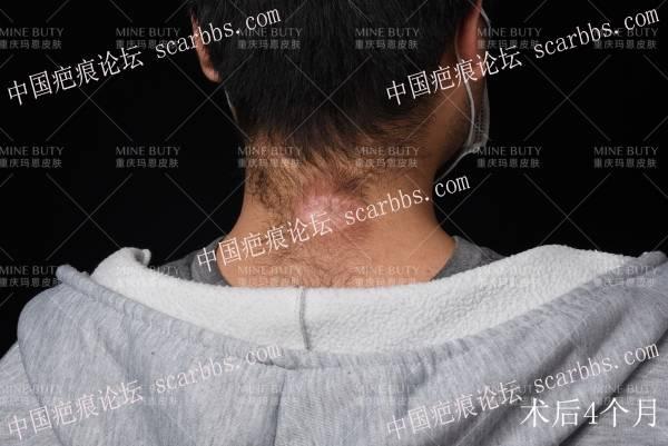 后颈部疤痕疙瘩治疗案例