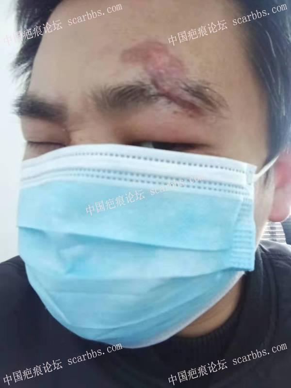 眉毛受伤拆线后半个月
