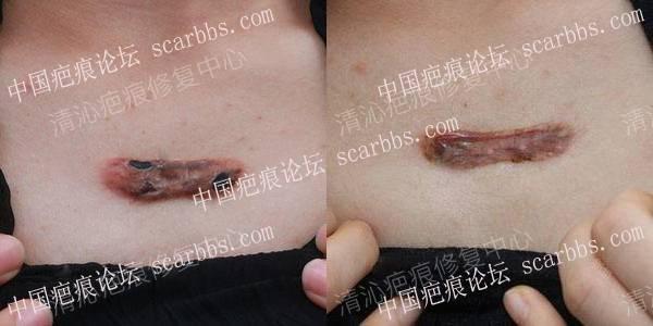 疤痕针治疗.jpg