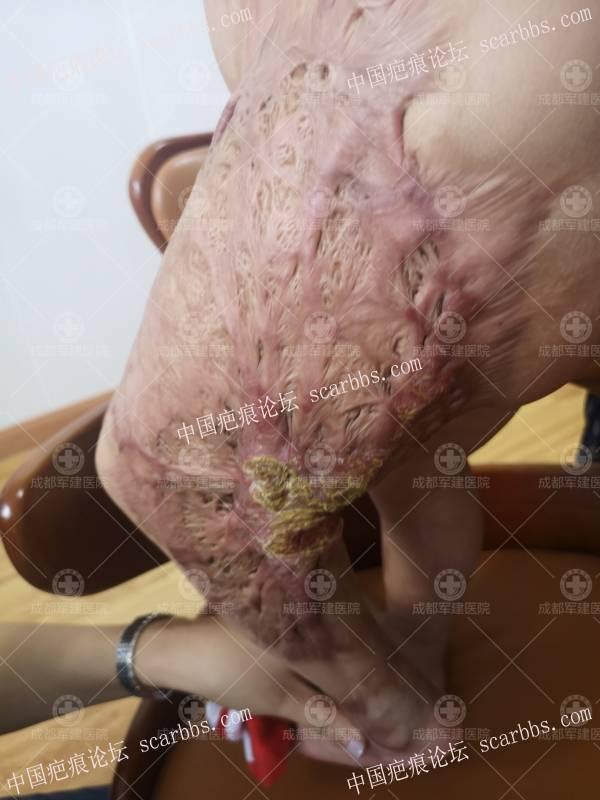 """【大爱公益】2岁患儿摆脱疤痕舒服  迎来""""飞驰""""人生"""