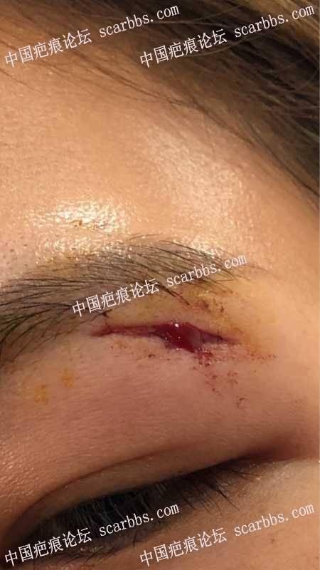 凹陷疤痕修复方法