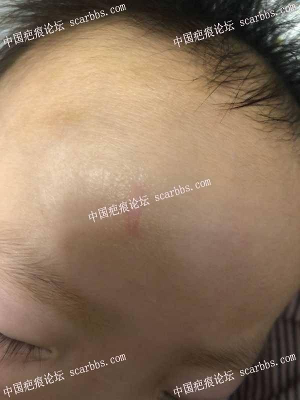 杨医生,帮我看下我儿子额头的疤痕还有办法修复吗?