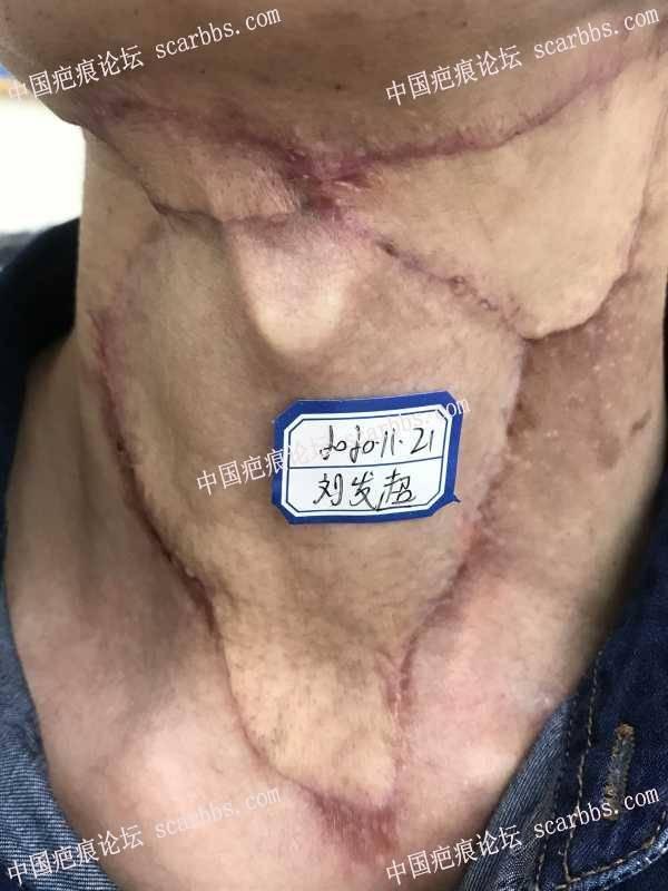 颈部手术术疤痕,第一次离子束后20天,大家觉得有效果吗