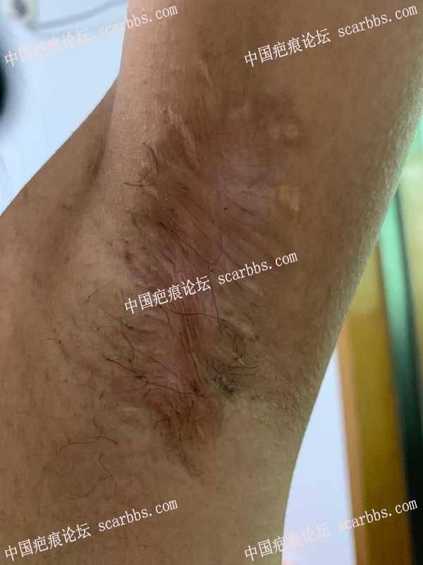 腋下传统大切口手术疤痕点阵激光治疗