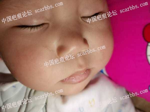 宝贝摔跤,脸被戳伤,四个月了有留疤,请问怎么处理
