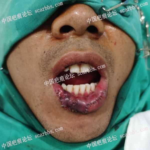 人咬伤(右下唇缺损一期修复)