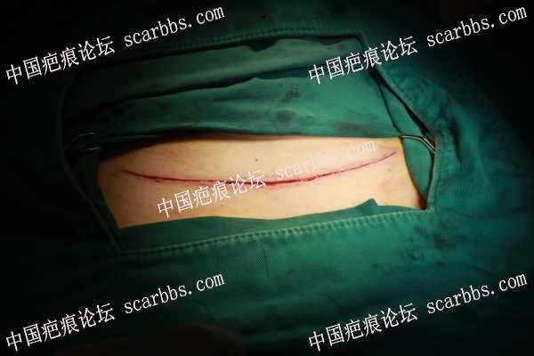 剖腹产疤痕鱼骨线减张
