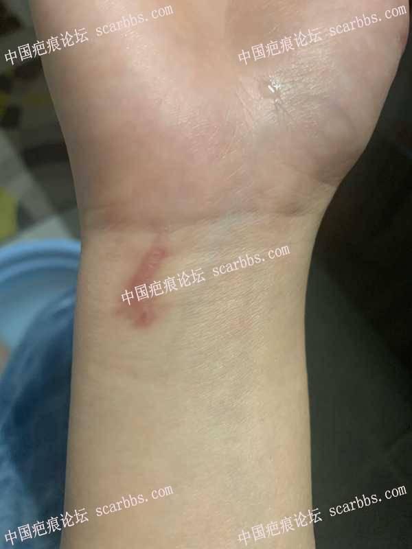 手腕增生疤痕