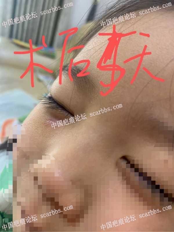 4岁女孩脸上磕伤
