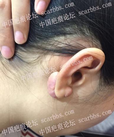 耳朵疤痕疙瘩怎么祛除比较好呢
