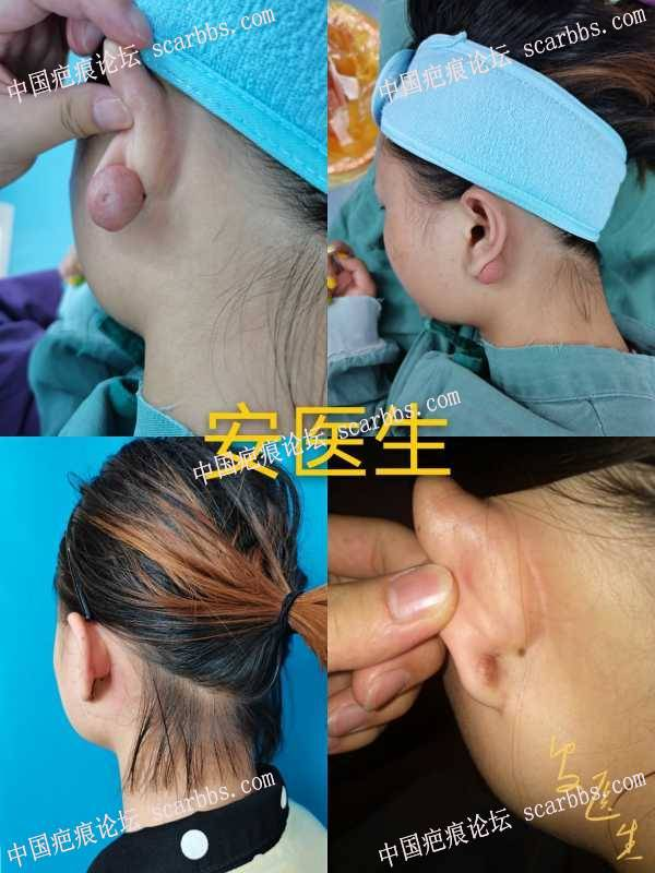 耳部疤痕疙瘩治疗!有些不需要浅放效果也不错的!
