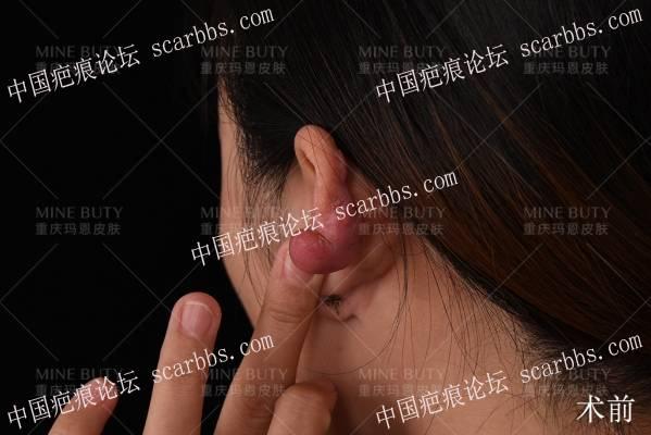 耳部疤痕疙瘩手术会破坏耳廓形态吗?