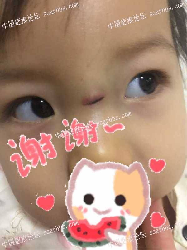 宝宝鼻梁磕伤第四天,伤口发红
