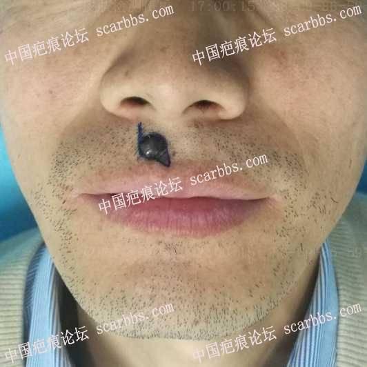 上唇色素痣切除