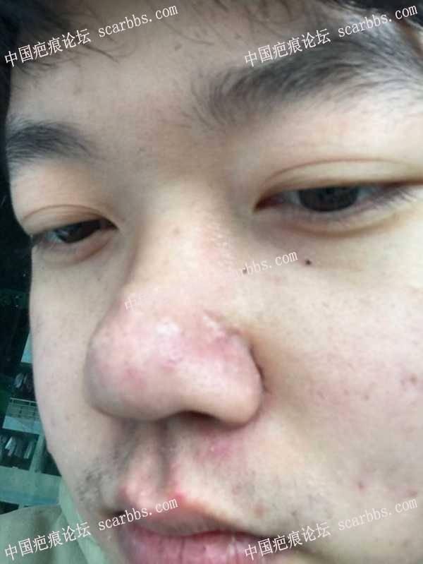 准备寒假去做鼻子上的切缝手术了 大家帮我看看