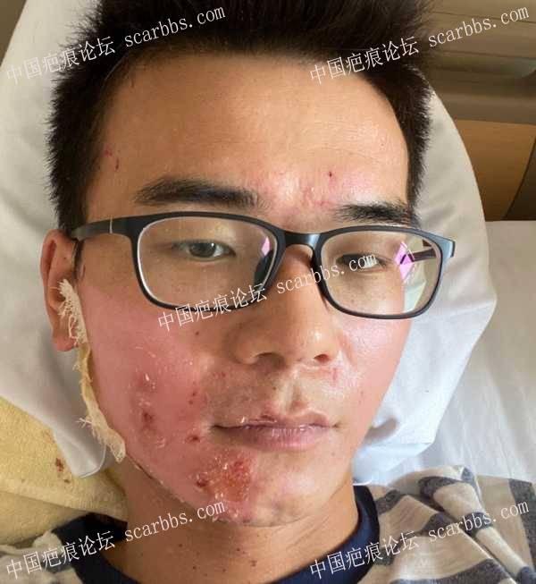 脸部被硫酸烫伤快6个月