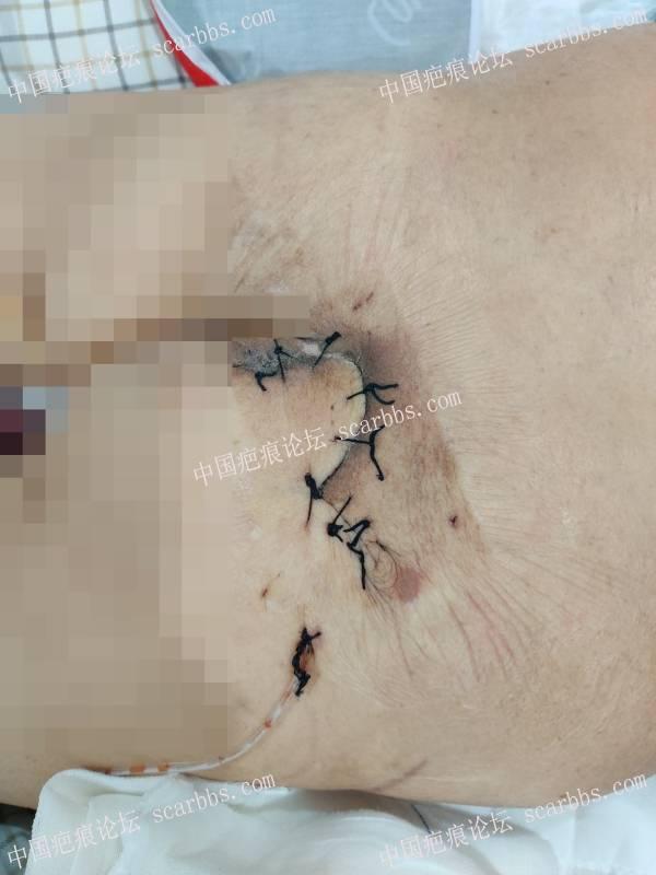 80岁老人骶尾部严重褥疮 ,手术清创任意皮瓣转移治疗