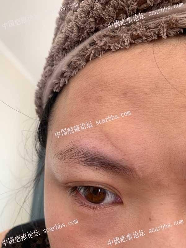 撞的额头缝针疤痕,这样是应该切缝还是继续做激光