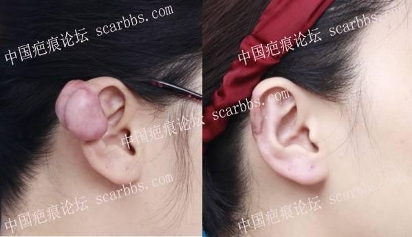 耳朵疤痕疙瘩该如何祛除??