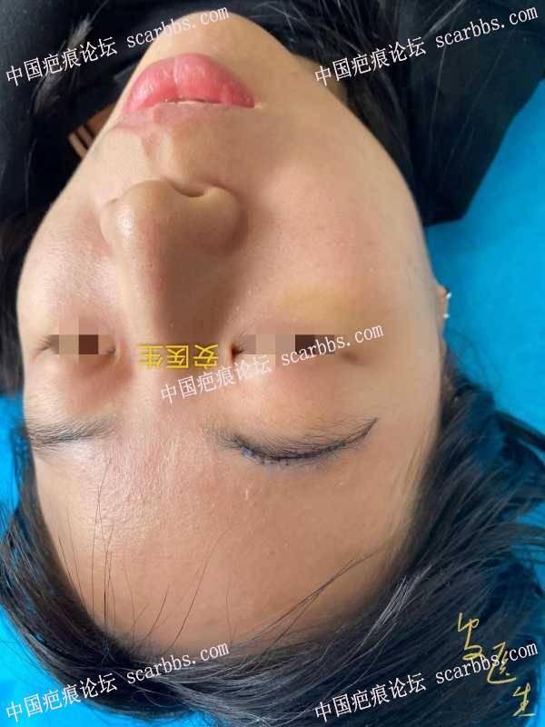 宝宝左眉磕伤,能不留疤吗?