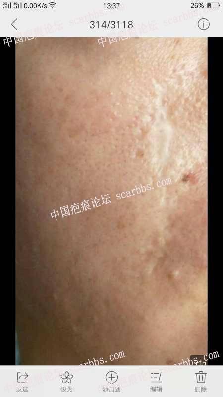 面部线状手术发白疤痕