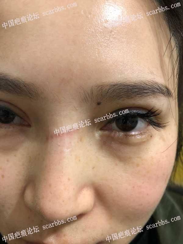 鼻梁凹陷疤痕做了超减张缝合手术