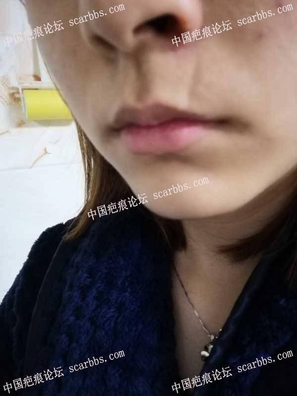 上嘴唇旁的凹陷疤痕切缝