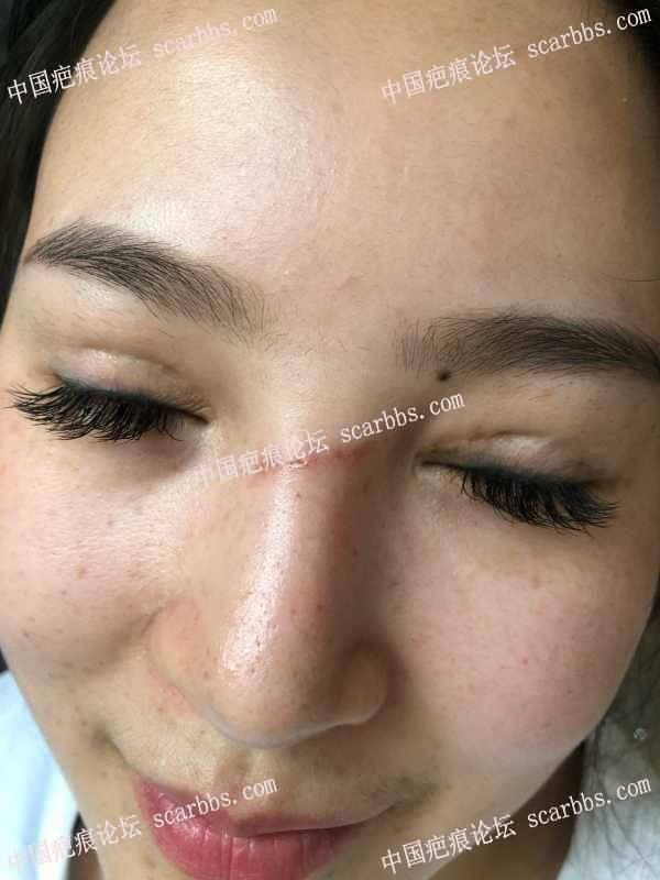 有没有疤痕增生选择切除缝合手术的案例啊?