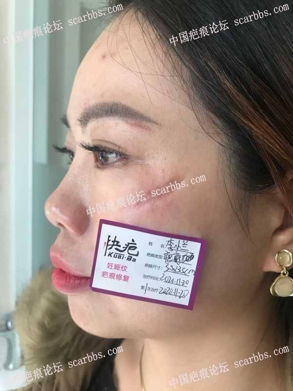 面部的疤痕困扰多年,成都找到杨长东院长亲自给我操作