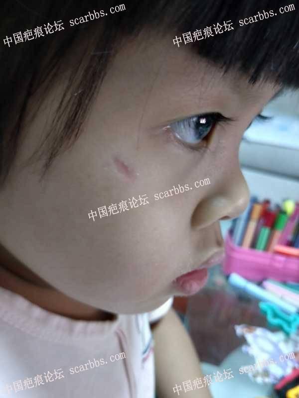 儿童面部磕伤,伤到面部肌肉。后续怎么办?
